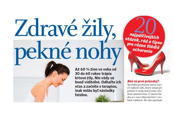 Zdravé žily, pekné nohy (Čas pre ženy 10/2015)